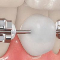 orthodontics-vax-2
